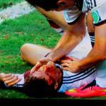 Foto – Germania, terrificante infortunio per Muller: testata incredibile e quanto sangue!